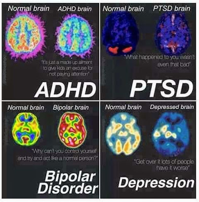 PTSD, The Brain, And Your Role